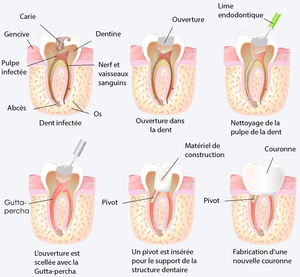 Les onguents au psoriasis sur la personne